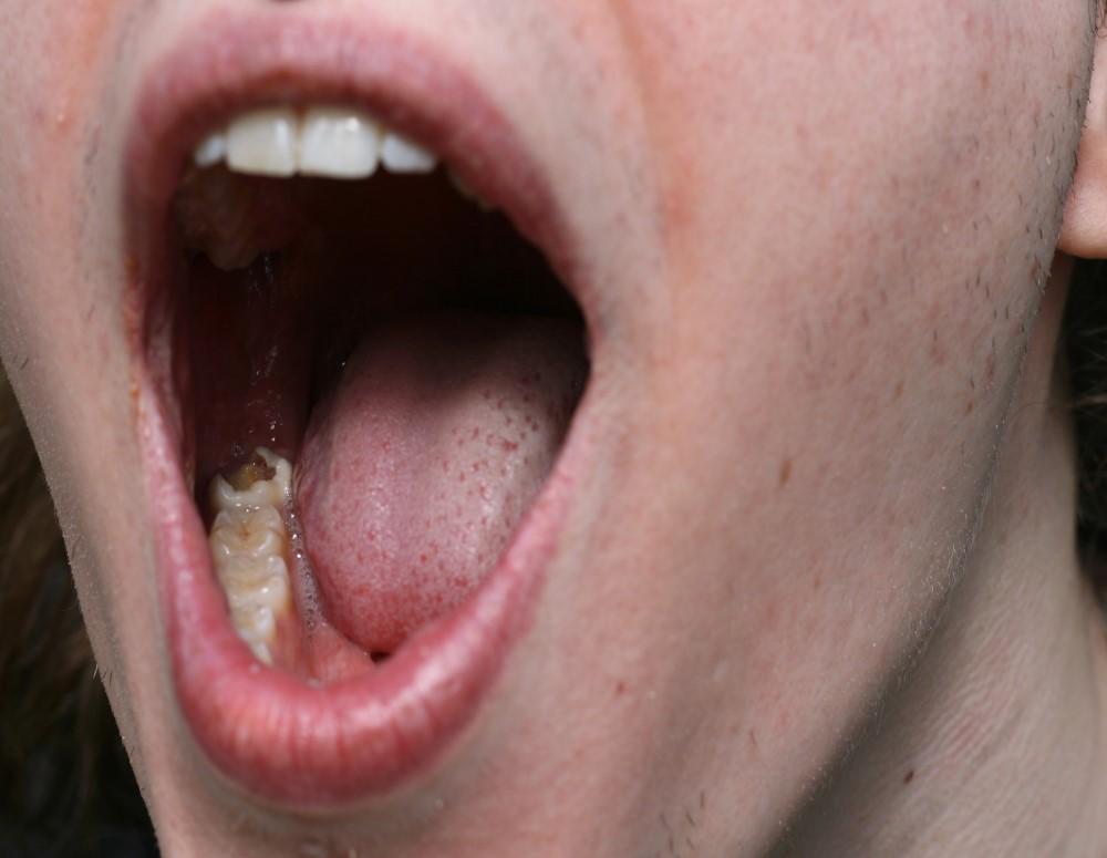 εξαγωγη δοντιου καλαμαρια