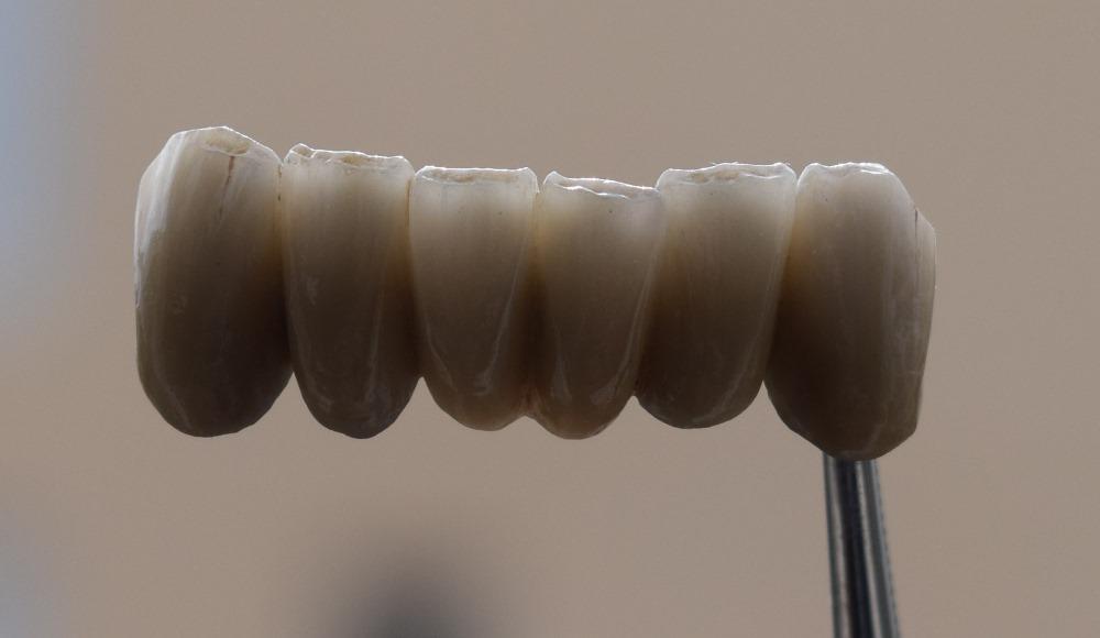 εμφυτευματα δοντιων καλαμαρια