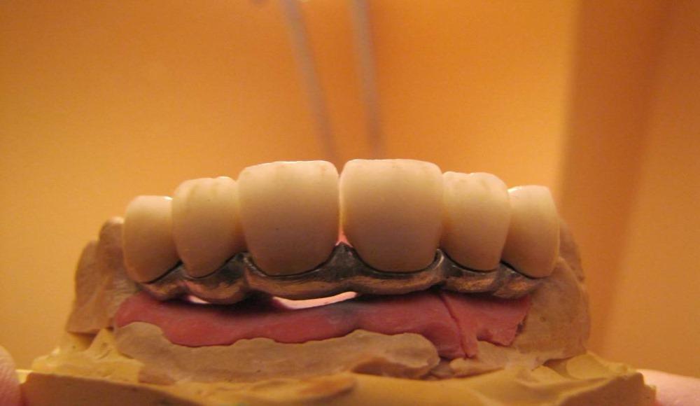 εμφυτευματα δοντιων πανοραμα