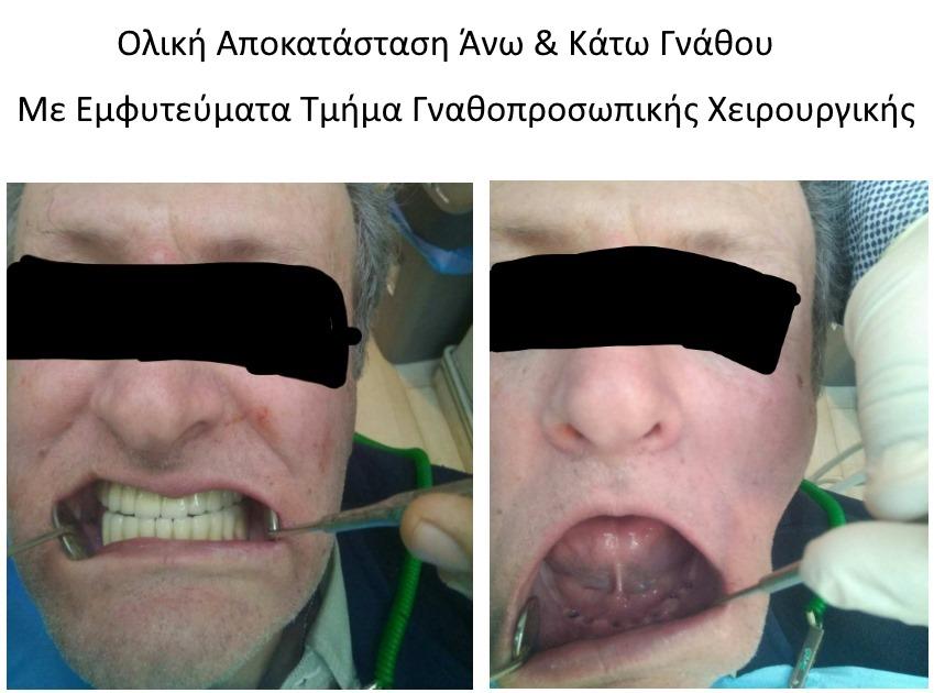ναθοχειρουργος καλαμαρια