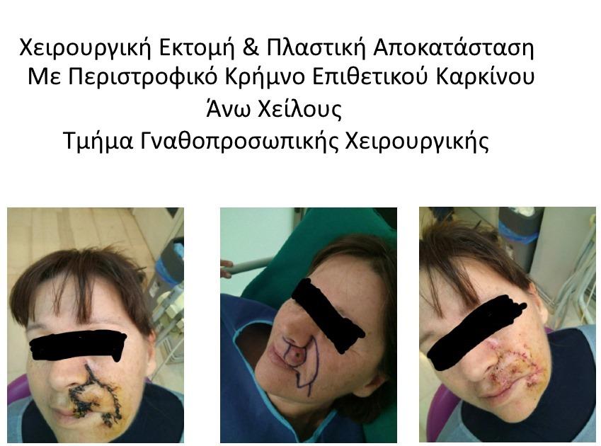 γναθοχειρουργος πανοραμα