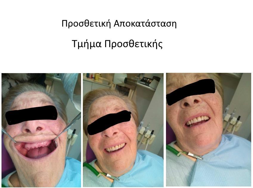 γναθοχειρουργος πυλαια
