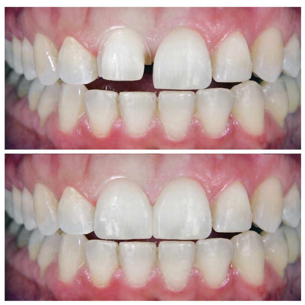οδοντιατρειο καλαμαρια