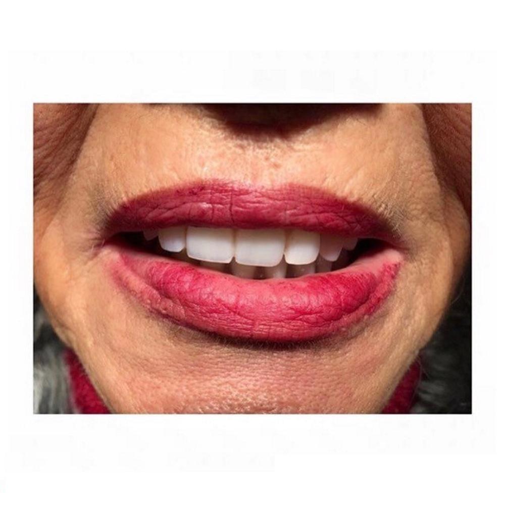 αισθητικη οδοντιατρικη θεσσαλονικη