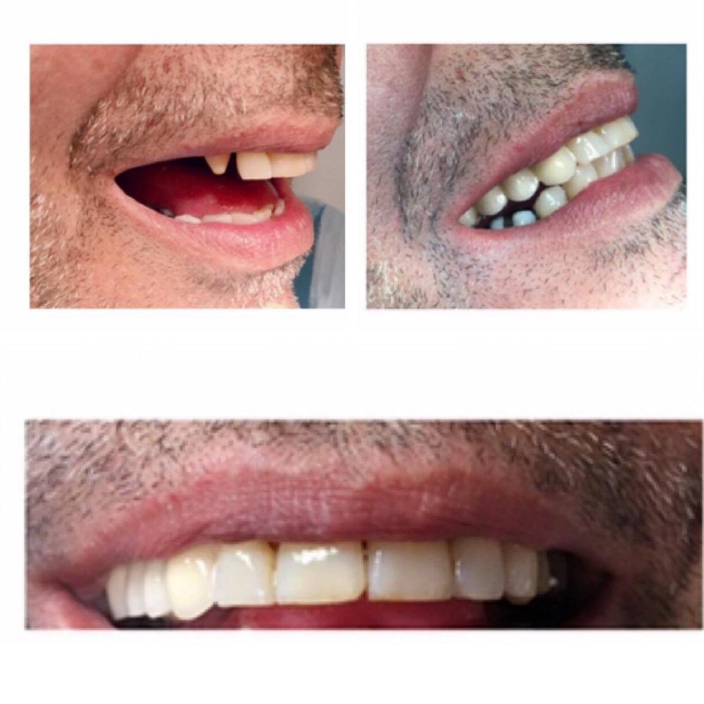 αισθητικος οδοντιατρος καλαμαρια