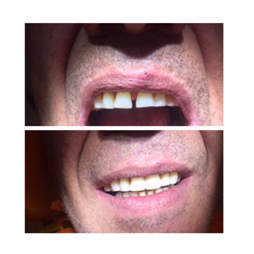 αισθητικη οδοντιατρικη καλαμαρια